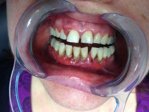 b_300_225_16777215_00_images_parodontologie_IMG_6114.JPG