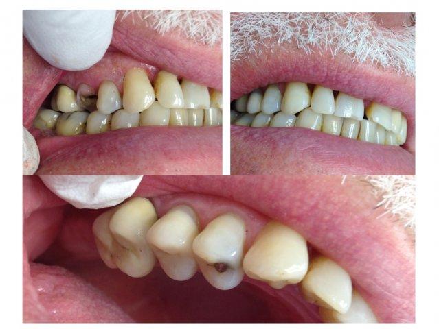 bc467db0c626 Záchovná stomatologie