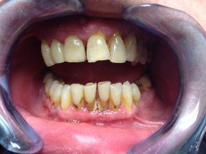 b_300_225_16777215_00_images_parodontologie_IMG_6178.JPG